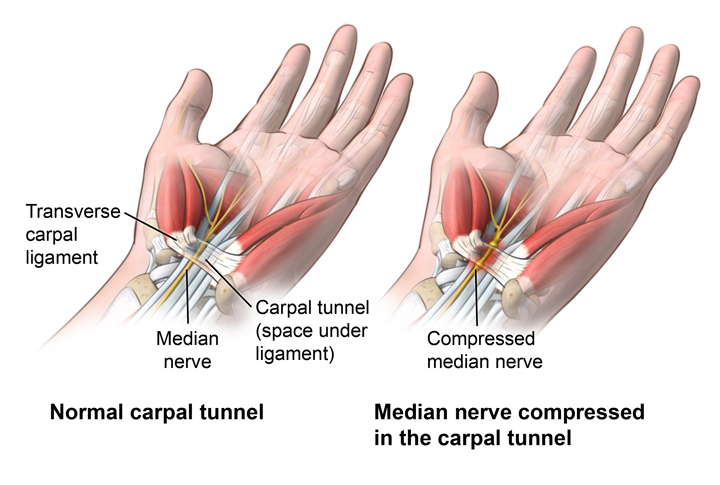 An Introduction To Carpal Tunnel Symptoms